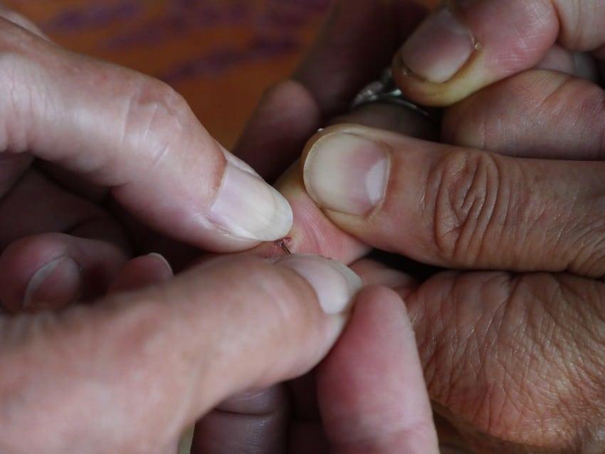 Ein Kind hat eine Sprisse im Finger - Praktische Anwendung Hypnose gegen Schmerzen